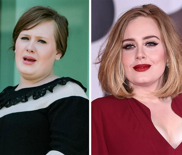 Adele Before And After