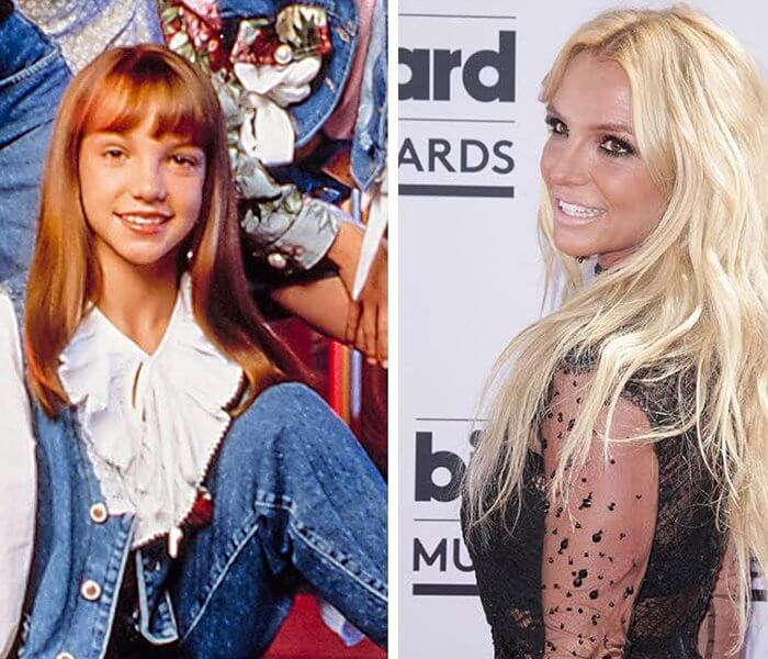 Brotney Spears Before And After