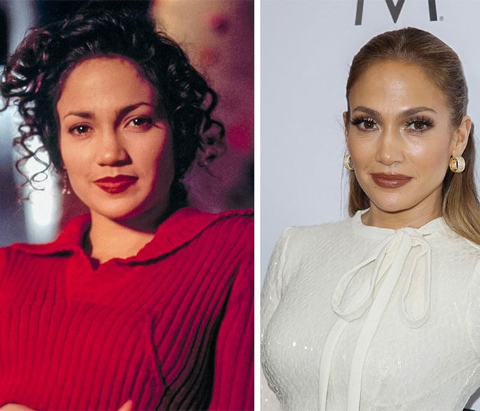 J Lo Before And After